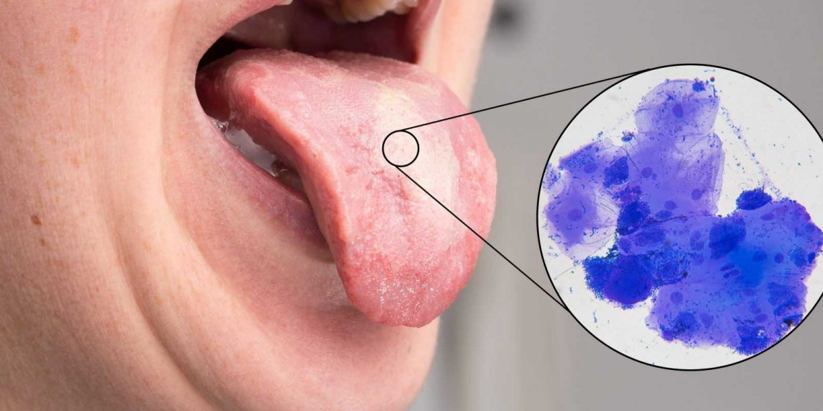 Oral trush on woman tongue with microscope view